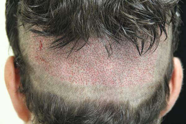 hair transplant cost, hair transplant dubai, hair clinic dubai