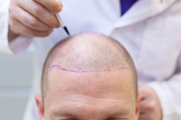 hair clinic abu dhabi,hair transplant clinic in abu dhabi, hair transplant dubai