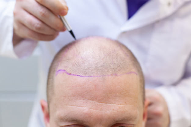 hair transplant dubai, turkish hair transplant, best turkish hair transplant